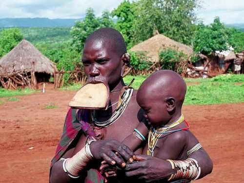На 1 кв. км площади приходится 52 человека. Дети младше 14 лет составляют более половины населения. В последнее время уровень детской смертности в республике достиг угрожающей отметки в 90%. Более 4% взрослого населения заражены вирусом иммунодефицита (ВИЧ). Средний возраст, до которого доживают граждане Эфиопии, равен 48-50 годам.
